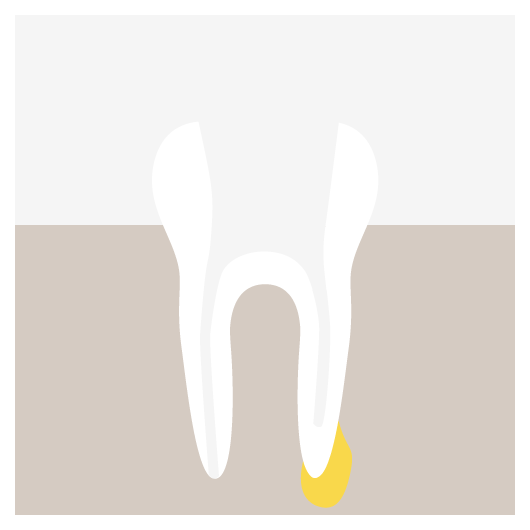 Root Canal Retreatment - The Opening