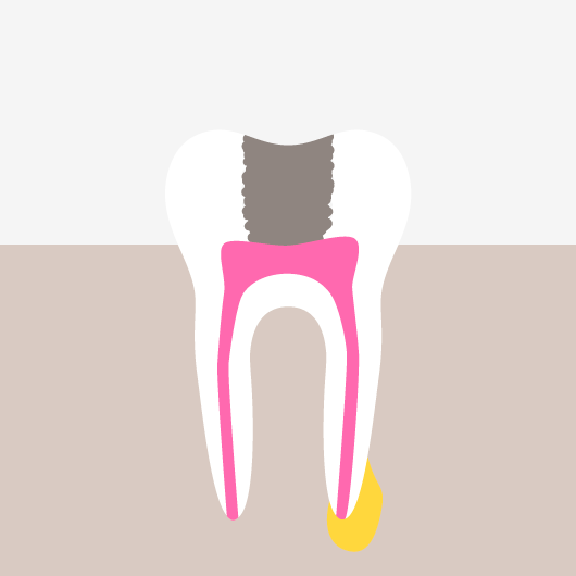 Root Canal Treatment - Damage