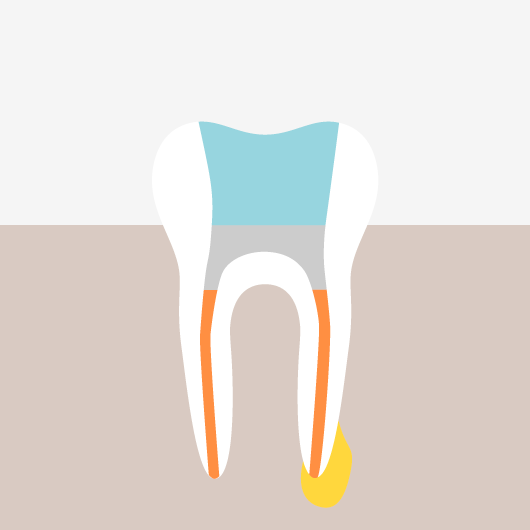 Root Canal Treatment - The Filling